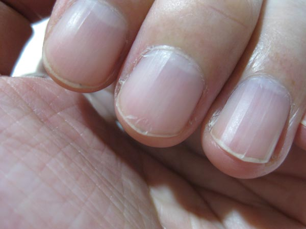 二枚爪の状態
